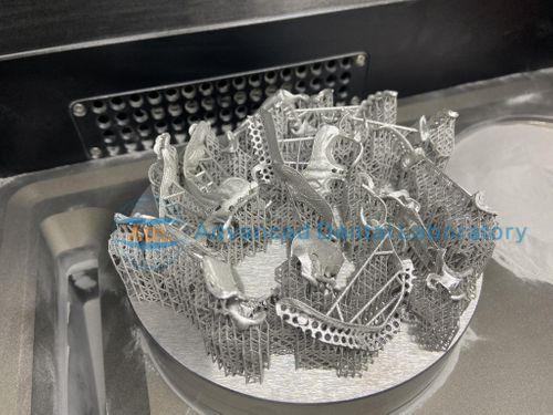 Laser Printed Metal Framework