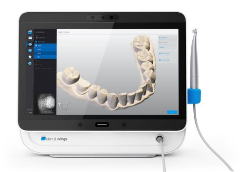 New Intra Oral Scanners