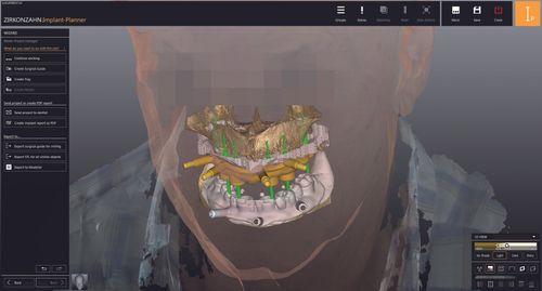 Zirkonzahn.Implant-Planner
