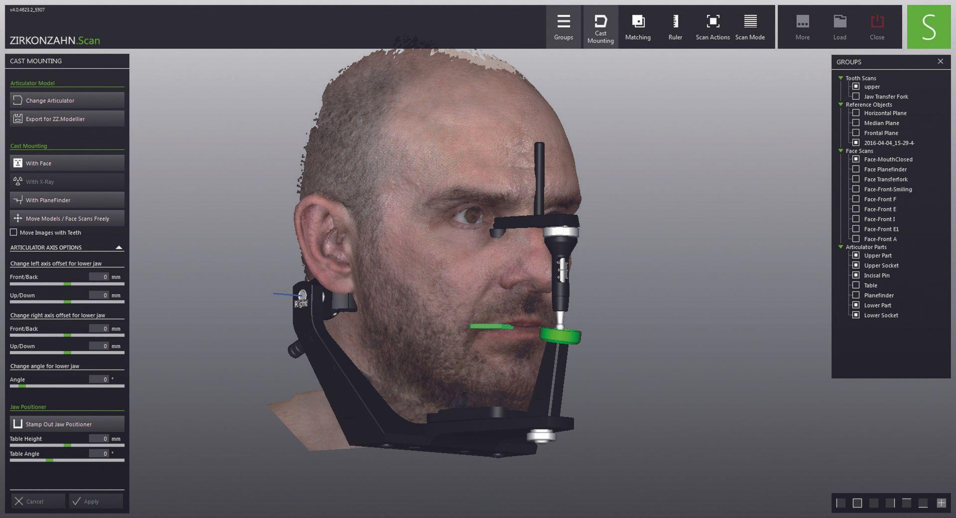 FACE HUNTER – The Zirkonzahn facial scanner