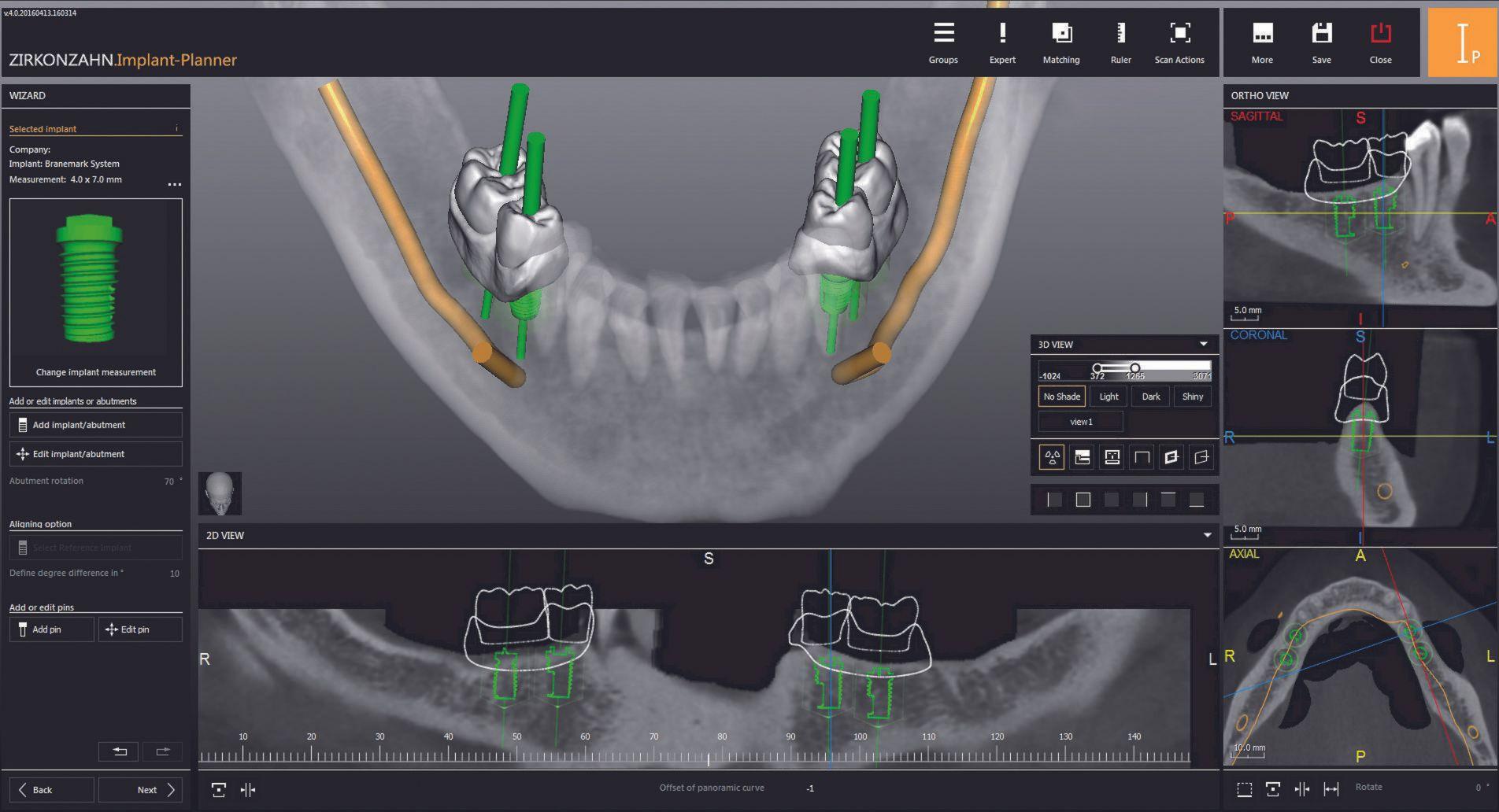 Safe planning in implant prosthetics