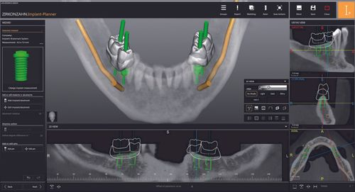 Safe planning in implant prosthetics