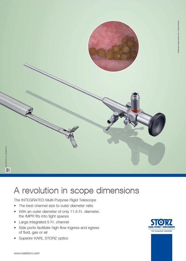 A revolution in scope dimensions