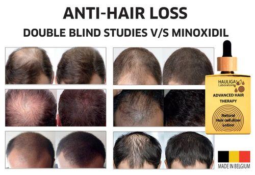 Terryspher® hair growth galvaniser