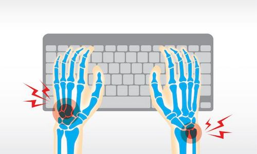 Musculoskeletal conditions are an issue businesses can't afford to ignore. Here's why